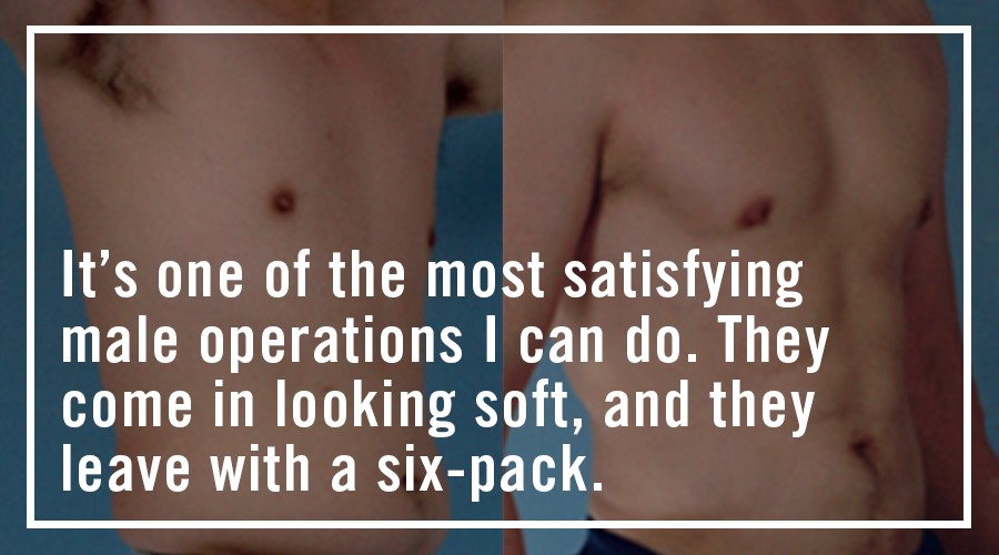 The Oral History of Abdominal Etching | MEL Magazine