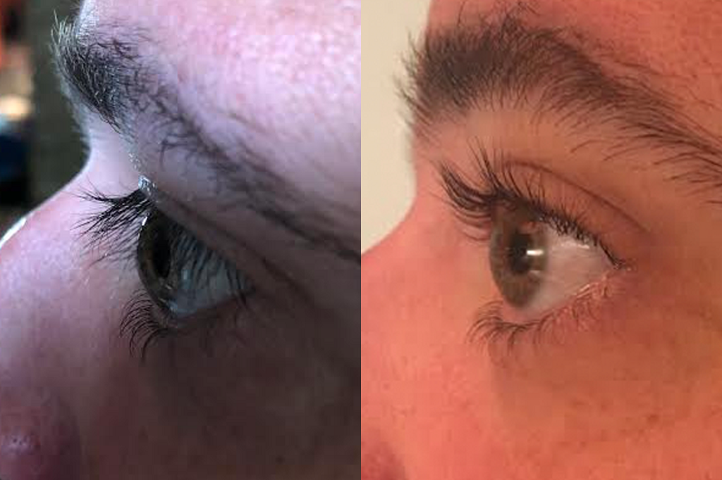 How An Eyelash Perm Helped Me See The World For The First Time Mel