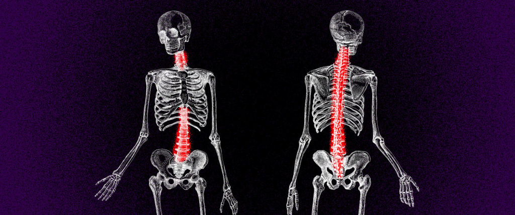 Is There Really Any Such Thing as 'Good' Posture?