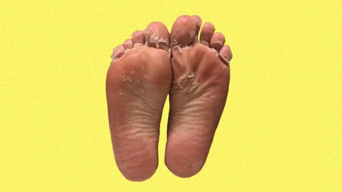 Foot_Peel