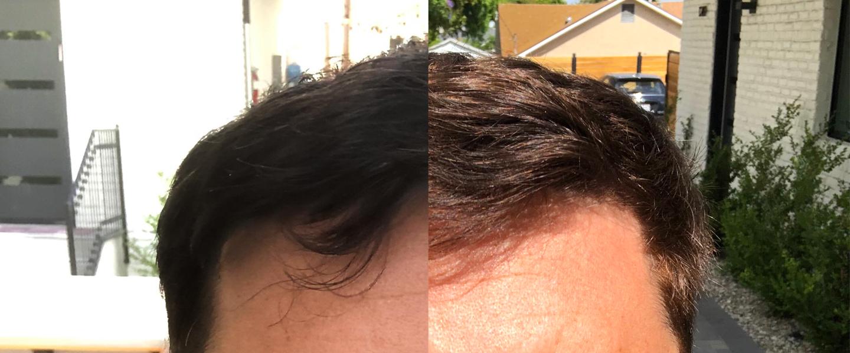 I_Tried_to_Turn_My_Hair_Blonde